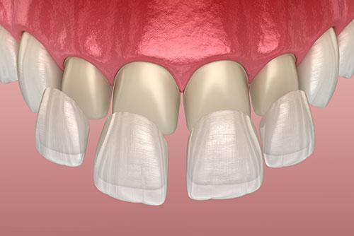 Cosmetic Crowns and Veneers Woodland Hills Dentist