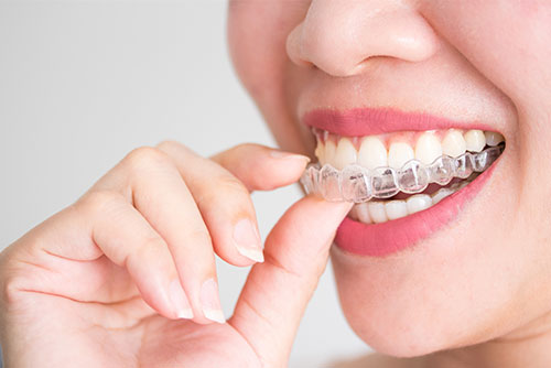 Invisalign Woodland Hills Dentist Dr. Solow