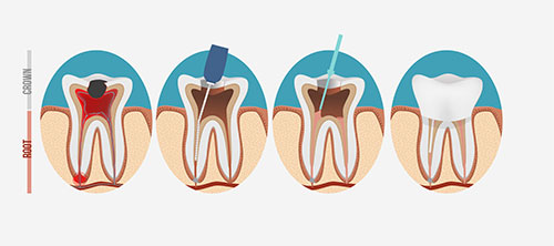 Root Canals Woodland Hills Dentist