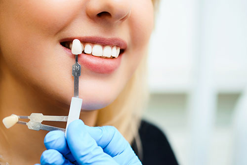 Smile Design/Makeover Cosmetic Dentist in Woodland Hills
